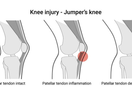 "I've rehabbed my ACL, now I have ""Jumper's Knee""!"