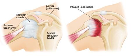 Frozen Shoulder Anatomy