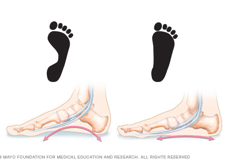 How to fix your flat feet - best 4 exercises