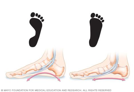 Fix your flat feet