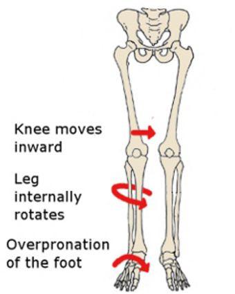 How weak hips cause flat feet