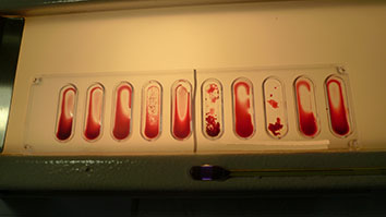ematologia - gruppo sanguigno