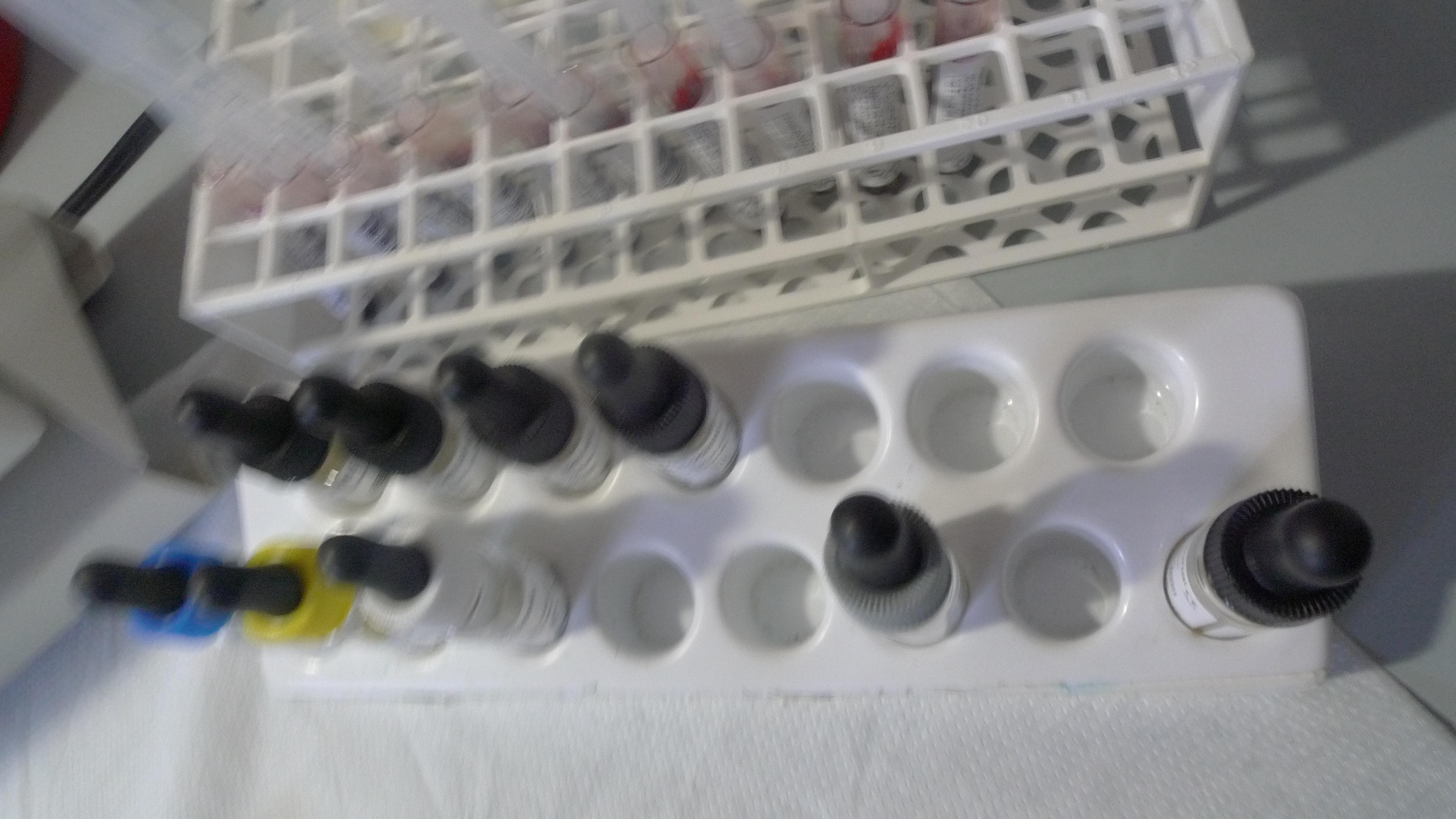 antisieri gruppi sanguigni