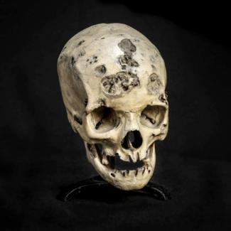 Syphilitic Skull