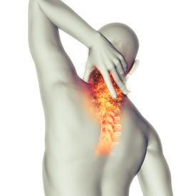 douleur cervicale, douleur dos