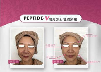 Peptide-V_03.jpg