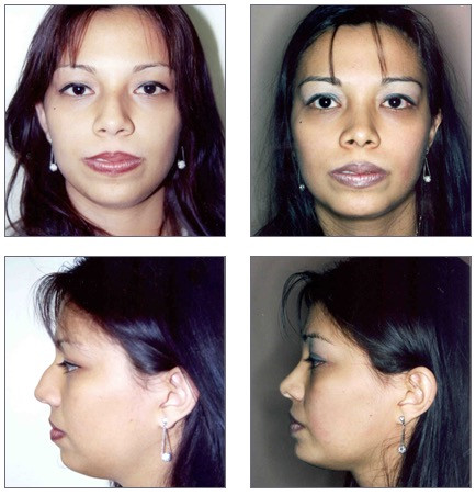 Rhinoplasty and Chin Implants Before and After