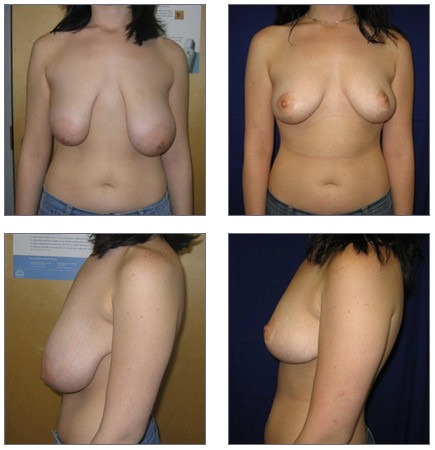 Breast Lift and Correction Before and After