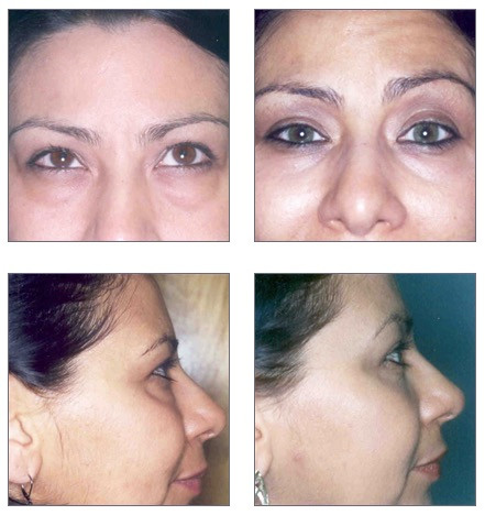 Blepharoplasty (eyelid surgery) Before and After