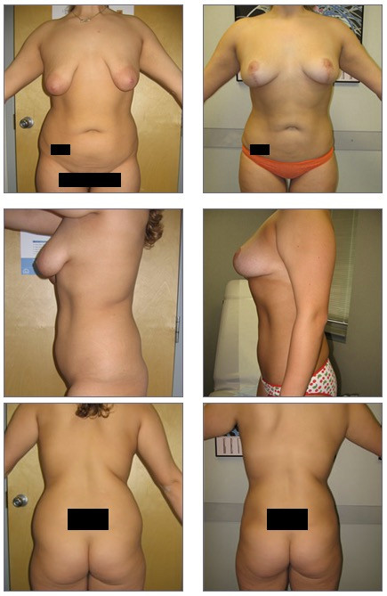 Liposuction and Breast Lift Before and After
