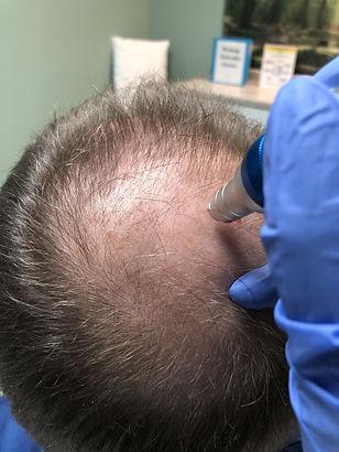 Microneedling hair follicles(1).jpg