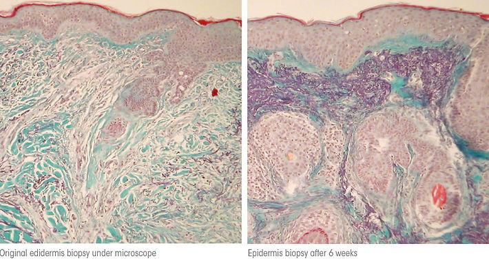 collagen-biopsy.jpg