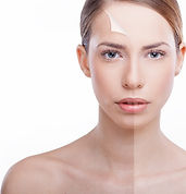 Epiphany Spa Glycolic Acid Peel