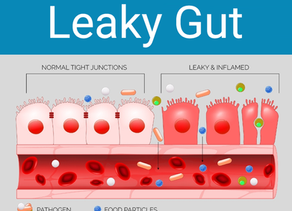 Is Stress causing you to have Leaky Gut?