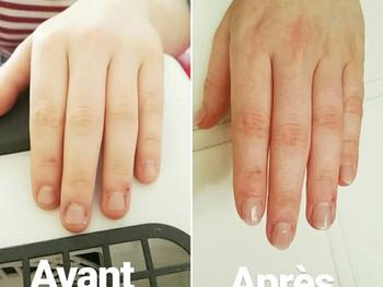 Pose spéciale ongles rongés