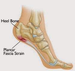 Plantar Fasciitis ~ is there help?