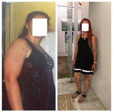 איריס - לפני ואחרי