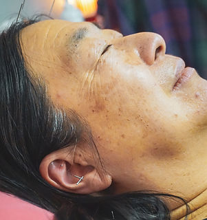 Peaceful woman getting auricular acupuncture treatment