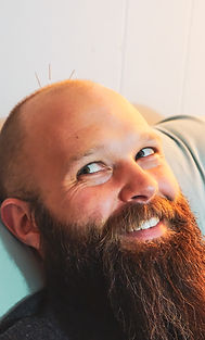 Young man's head with beard smiling during acupuncture treatme