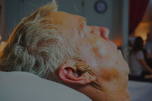 An older man with acupuncur needles in his head and ears