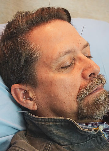 the face of a middle aged man with mustache and goatee relaxed while getting acupuncture with needles in his head, neck and ear