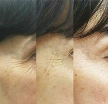 Profhilo Crows Feet Before & After.jpeg