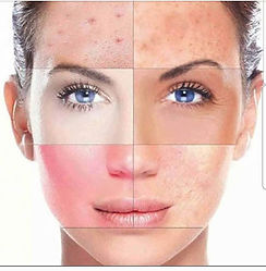 Microneedling is a form of collagen indu