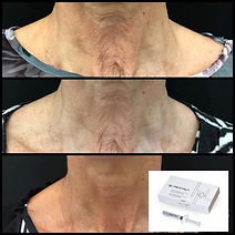 Profhilo Neck Before & After 2.jpeg
