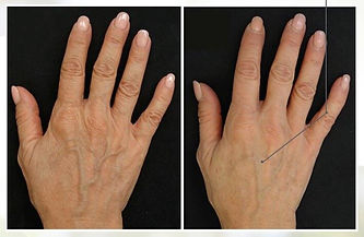 Profhilo Hands Before & After.jpeg