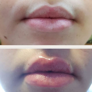 Client immediately after 0.55ml Juvederm
