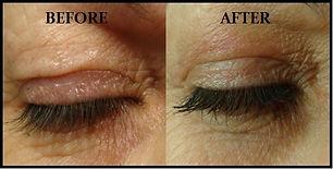Before_After_Plexr_Eyes.jpg