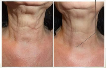 Profhilo Neck Before & After