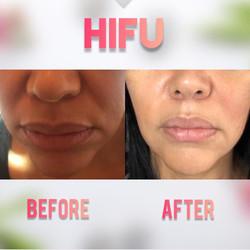 Hifu facelift