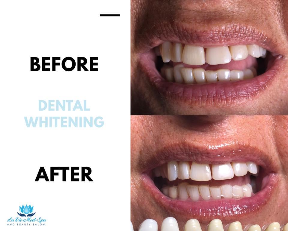 Dental whitening