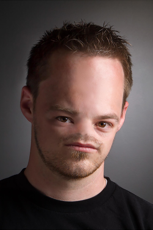 Cody Moffat No Nose
