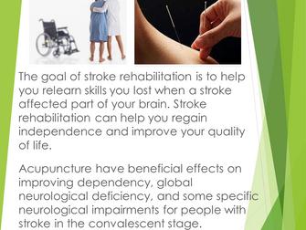 Stoke rehabilitation