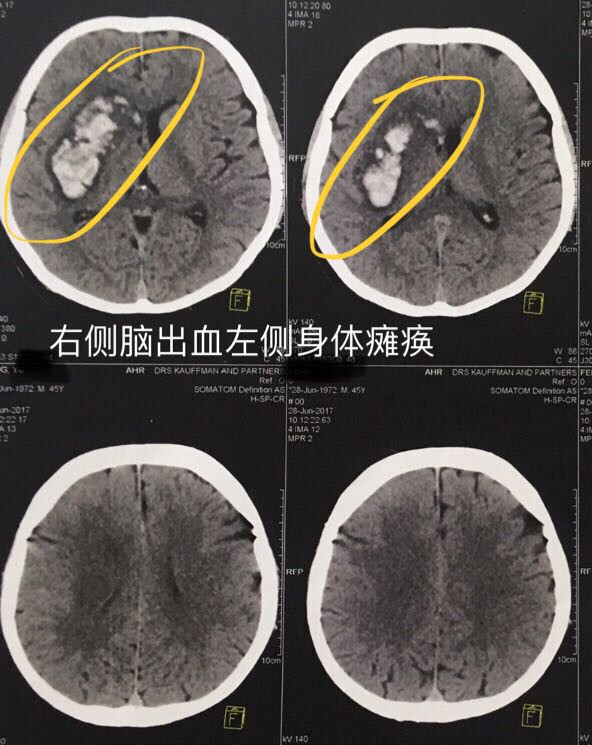 Intracerebral heamorrhage