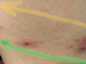 Case study | Shingles treated with herbal medicine