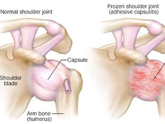 How to release a frozen shoulder 2019-7-12