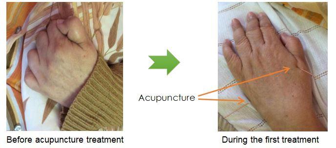 Chinese medicine acupuncture Johannesburg