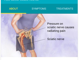Acupuncture does work for sciatica