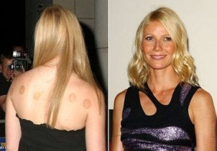 cupping-Paltrow.JPG