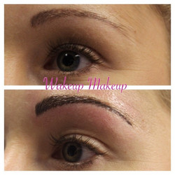 Hairline brows