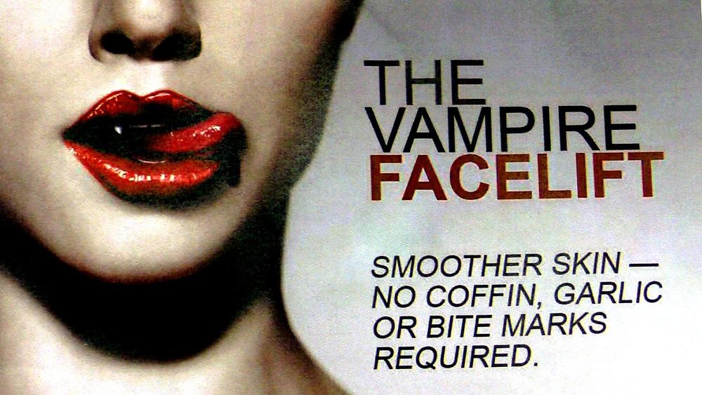 vampire facial (PRP)