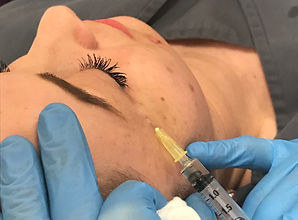 Semi Permanent makeup removal