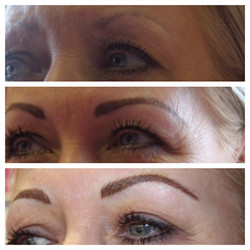 healed hairline brows