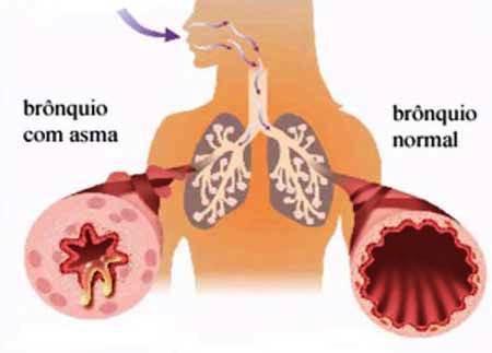 Asma na Infância
