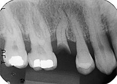 X-Ray of Decayed Tooth With Curved Root