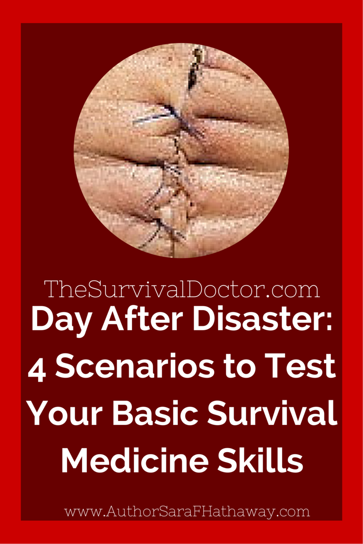 Testing Your Survival Skills