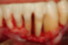 Bone Loss From Gum Disease
